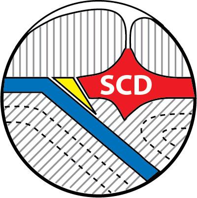 SCD400
